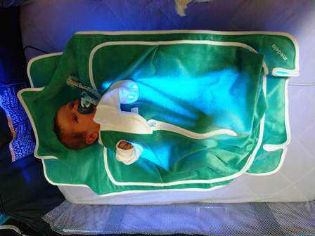 מיטות אור להורדת צהבת לתינוקות לפני הברית בעזרת אחים